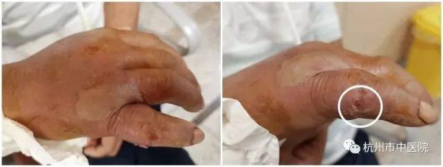 杭州男子为了吃大螃蟹 手被蟹钳夹烂了